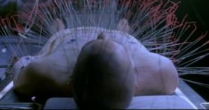 Neo Acupuncture